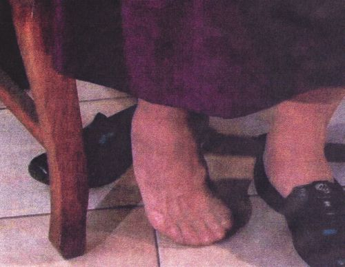 Miracle Story: How Our Lady of Lipa Healed My Club Foot